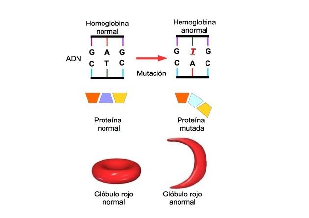mutacion hemoglobina